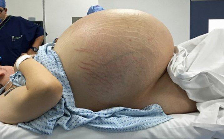 Во нејзиниот стомак растело чудо од половина метар и 30 килограми